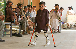 Afghans do physical training to make using their  prosethetic limbs easier at the International Committee for the  Red Cross hospital August 6, 2002 in Kabul, Afghanistan.  Most of the Afghans had lost a limb due to landmines and unexploded ordinances that litter the countryside of  this war torn country. (photo by Ami Vitale)