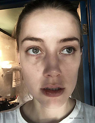 "These harrowing photographs show injuries Amber Heard claims she sustained at the hands of her then-husband Johnny Depp after telling him she was going to leave him. The photos — filed at a court in Virginia by Heard's legal team — form part of a bombshell dossier as a rebuttal to Depp's $50million defamation lawsuit against his former wife. Graphic images show Amber with facial abrasions, bruises, and clumps of hair missing following an incident which allegedly happened days before Christmas in Los Angeles in December 2015, just nine months after the pair married. In the deposition Amber, 32, claims Depp, 55, attacked her at their Los Angeles penthouse before friends were due to arrive She claims that at one point he dragged her by the hair, onto their marital bed, and beat her while screaming: 'I'll f*****g kill you, you hear me?'  Describing what happened next, Heard claims in the legal document: 'Hoping to avoid the violence, I tried to calm Johnny down, and then went upstairs to try to remove myself from the situation. 'Johnny followed me, hit me in the back of my head, grabbed me by my hair again, got in front of me on the steps, and then dragged me by my hair up the last few steps.  'At the top of stairs, Johnny shoved me twice, which made me fear I would fall. I told Johnny that he had broken my wrist in an attempt to get him to stop. 'Johnny kept hitting me, and each time he knocked me down, I chose to react by simply standing up and looking him in the eye. Johnny responded by yelling: ""Oh, you think you're a f***ing tough guy?"" 'He reeled back and head-butted me in my face, bashing my nose, which immediately began bleeding, sending searing pain through my face. I instantly started tearing up, and I thought that I would have to go to the hospital.  'I told Johnny I wanted to leave him, and that I would call the police if he ever touched me again. When I began to walk away toward the guest apartment, he responded by pushing me, then grabbed me a"