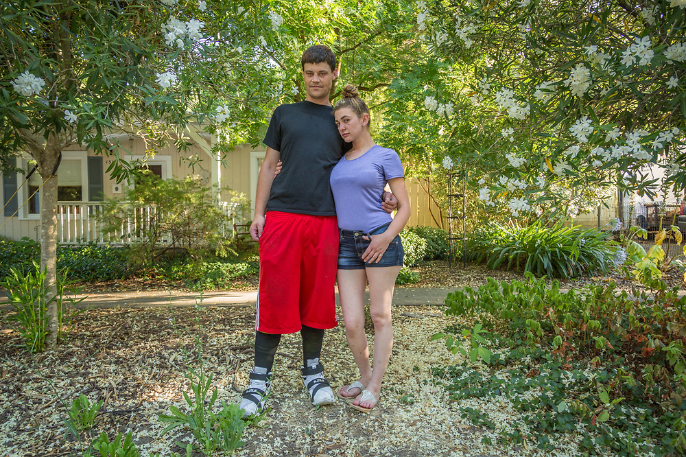 """I had an underwater welding accident four years ago.  So far, I have had seven operations on my legs and none of the skin grafts have been successful.  We are hopeful the the next one will work.""  -Healdsburg residents Matt Tapparo and Ashley Zelmer visit Calistoga"