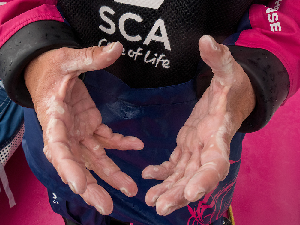 October, 2014. Leg 1 onboard Team SCA. What sailing hands look like after 18 days at sea.