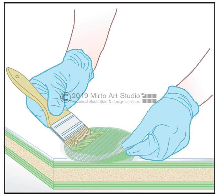 Vector artwork of hands applying epoxy and fiberglass cloth, fiberglass blister repair.