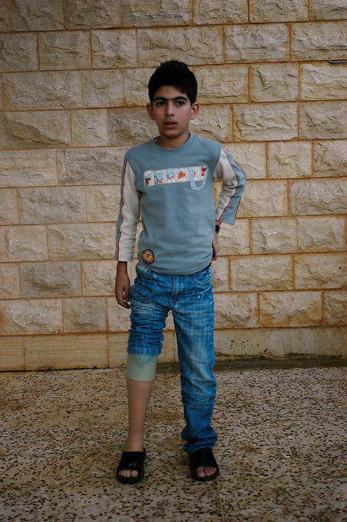 Hussein Zourayk, 13, who lost his leg in a cluster sub-munition accident, with his family. Hundreds of thousands of cluster sub-munitions left over from the 2006 Hezbollah - Israel war are scattered across southern Lebanon..Aadchit, Lebanon. 28/11/2008.Photo © J.B. Russell