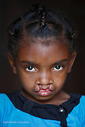 Photo Shows:   Vaviroa Lalatianan, Female, 6 years old. Bilateral Cleft lip, Before.<br /> <br /> Vaviroa's younger sister Arimalala Nambina, 2 years old has a Unilateral Cleft lip. Vaviroa has never been to school because her parents worry that the other children will tease her. They live in a small hamlet accessible by single path over rough terrain. The nearest village is Ambodijania. Mother and father work as subsistence farmers, mainly growing rice. Occasionally the father Dest works in a neighbour&rsquo;s field for which he earns 3000 ariarys ($1.20) per day. <br /> <br /> They were aware of Operation Smile&rsquo;s 2013 mission to Antananarivo but did not have the money to get there. They have never been to Tamatave where Operation Smile&rsquo;s 2014 mission will take place. The distance from their home to Tamatave is approximately 155 miles and the journey will take them 8 hours.<br /> <br /> Anivorano Est, North East of Brickaville. Madagascar. 29h August 2014. <br /> <br /> (Operation Smile Photo - Zute Lightfoot)