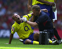 Photo: Richard Lane.<br />Arsenal v Manchester United. The FA Charity Shield 2003. 10/08/2003.<br />Freddie Ljungberg feels the pain after his shoulder is injured in a clash with Quentin Fortune.
