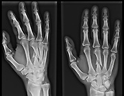 x-ray image of the broken third metacarpal bone in the hand