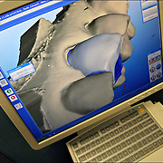 CEREC state of the art technology. Close up of 3D Ceramic Dental Reconstruction on Computer Screen, step by step: Computer Aided Design / Computer Aided Manfacture (CAD/CAM) An optical 3D image is acquired with a small camera directly in the patients mouth. The restoration is created on the screen using the image data.  Diamond coated instructments mill a ceramic block to reproduce the design. After polishing a new restoration fits precisely. A light hardens the bonding material, uniting porcelain and tooth. Polishing ensures a smooth and natural feel. The colour and appearance makes the ceramic material blend with the teeth. The porcelain is then bonded to the patients teeth.
