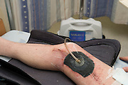 Vacuum Assisted Closure (VAC) or Negative-pressure wound therapy (NPWT) is a therapeutic technique using a vacuum dressing to promote healing in acute or chronic wounds and enhance healing of first and second degree burns.
