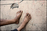 "Feet of an heroin smoker. Rawalpindi, Pakistan, on thursday, August 14 2008.....""Pakistan is one of the countries hardest hits by the narcotics abuse into the world, during the last years it is facing a dramatic crisis as it regards the heroin consumption. The Unodc (United Nations Office on Drugs and Crime) has reported a conspicuous decline in heroin production in Southeast Asia, while damage to a big expansion in Southwest Asia. Pakistan falls under the Golden Crescent, which is one of the two major illicit opium producing centres in Asia, situated in the mountain area at the borderline between Iran, Afghanistan and Pakistan itself. .During the last 20 years drug trafficking is flourishing in the Country. It is the key transit point for Afghan drugs, including heroin, opium, morphine, and hashish, bound for Western countries, the Arab states of the Persian Gulf and Africa..Hashish and heroin seem to be the preferred drugs prevalence among males in the age bracket of 15-45 years, women comprise only 3%. More then 5% of whole country's population (constituted by around 170 milion individuals),  are regular heroin users, this abuse is conspicuous as more of an urban phenomenon. The substance is usually smoked or the smoke is inhaled, while small number of injection cases have begun to emerge in some few areas..Statistics say, drug addicts have six years of education. Heroin has been identified as the drug predominantly responsible for creating unrest in the society."""