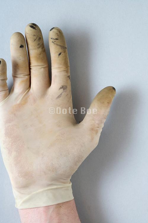 hand with used latex glove