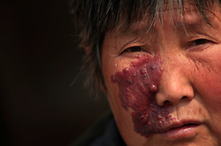 Chinese village Dong Wuyong of Dongtan Village is seen with a skin rash on her face that has become more serious over the years due to pollution from a nearby chemical plant in Zekou Town, Qianjiang City of Hubei Province, China 15 January 2013. While the heavy smog in Beijing and much of northern China in recent days have caused alarm among residents and renewed scrutiny on the pollution woes of the country, villagers in a small town of Hubei Province have been grappling with severe air, water and noise pollution on a daily basis over the past two years. China's Xinhua news reported 04 January 2013 that more than 60 cancer deaths in various villages of Zekou Town has been caused by the heavy pollution from the chemical industry park nearby. About 20 or more chemical plants built around the villages of Dongtan, Xiangnan, Zhoutan, Sunguai, Qingnian and others over the past two years has created huge increases in noise, air and water pollution. Many villagers complained of intensifying respiratory, heart, skin and circulatory illnesses caused by the pollution and a large spike in cancer diagnoses and deaths since the factories were built. .