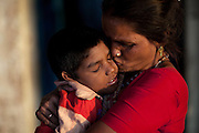 Raj, 7, a boy suffering from a severe neurological disorder is being kissed by his mother, Poona Bai, 40, in front of their home in the impoverished Oriya Basti colony, in Bhopal, Madhya Pradesh, India, near the abandoned Union Carbide (now DOW Chemical) industrial complex. Copyright: Alex Masi / Getty Grant for Good