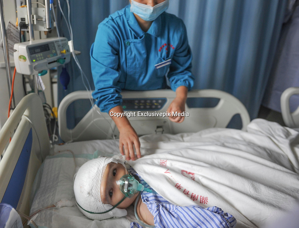 CHANGSHA, CHINA - JULY 15: (CHINA OUT) <br /> <br /> 3-year-old Girl Changes her oversize skull A 3D Printed Skull <br /> <br /> A girl lies on bed after receiving an operation that changing her oversize skull with a 3D printed skull at the Second People\'s Hospital of Hunan Province on July 15, 2015 in Changsha, Hunan Province of China. 3-year-old girl Hanhan\'s congenital hydrocephaly with 85 percent hydrocephaly made her skull 3 times bigger than the formal ones. Doctors of the Second People\'s Hospital of Hunan Province used 3D printing technology create a titanium alloy skull and made a 17-hour operation to set it on Hanhan\'s head successfully.. <br /> ©Exclusivepix Media