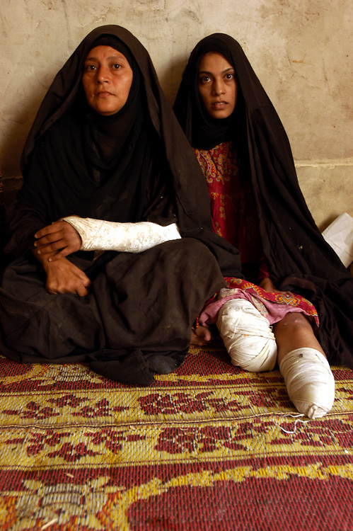 Elham al-Zahra, 21, lost both her legs when coalition aircraft bombed her village in the first days of the war. Her mother Zahra Musa Saleh was also injured. The attack destoyed 17 homes, killed 32 people and wounded more than 30..Khamsa Mille, Iraq. 22 May 2003..Photo © J.B. Russell