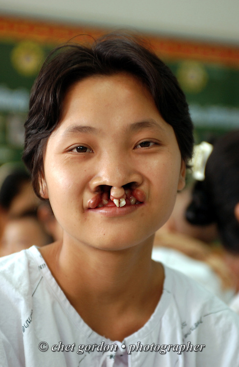 Teenage patient with a bi-lateral cleft lip in the waiting area during the first day of surgery at Mae Sot General Hospital in Mae Sot, Thailand on Monday, November 12, 2007.  © Chet Gordon for Operation Smile