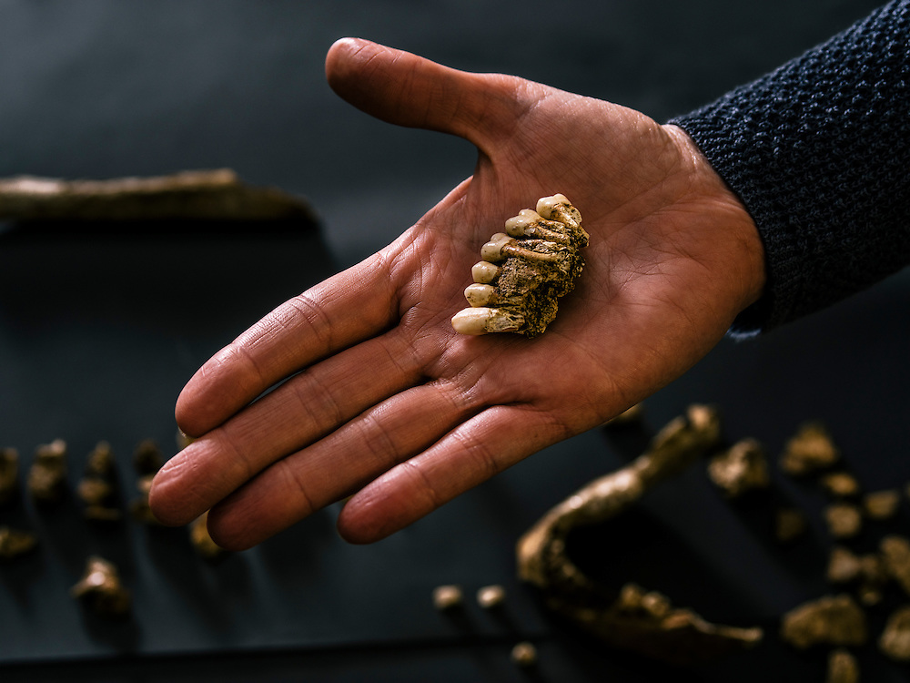 """Teeth from one of the four remains discovered in what explorer John Smith called the """"golden church,"""" the first Protestant church in the Americas at Fort Jamestown in Va. Anthropologists from the Smithsonian Institution, have been able to use the remains to identify these historic early settlers."""