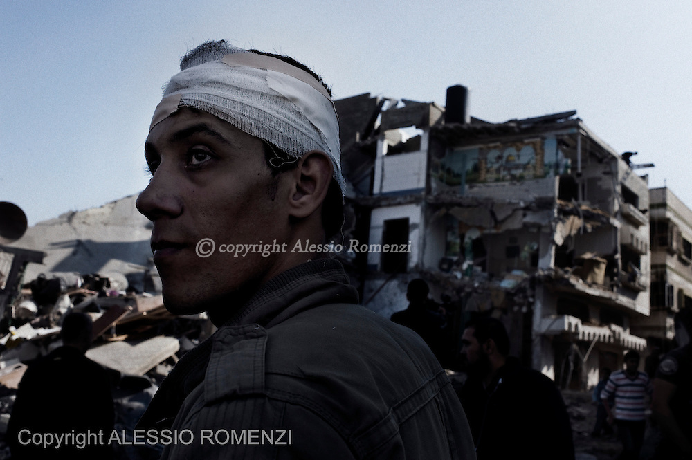 Gaza City: A Palestinian man with a head injury, stands in front of a building hit during an Israeli missile attack. November 20, 2012. ALESSIO ROMENZI