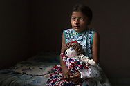 Maria Francis Aleman Guardado, 11, sits at her bed at a shelter in Santa Rosa de Copan, Honduras Feb. 22, 2017. Francis suffered from a cleft lip her entire life until Dr. Lester Mohler , a volunteer doctor with  CAMO, repaired her cleft lip at Occidente Hospital in Santa Rosa de Copan.  Francis, always extremely self concious of her looks always held her hand in front over her mouth to hide her terrible cleft lip. Photo Ken Cedeno