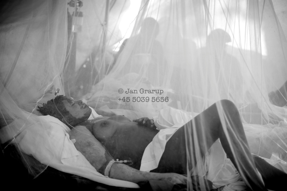 Port au Prince, Haiti -Monday 18.<br /> Victims of the quake at an MSF hospital in the city.