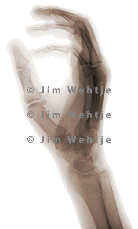 X-ray image of a closed hand (brown on white) by Jim Wehtje, specialist in x-ray art and design images.