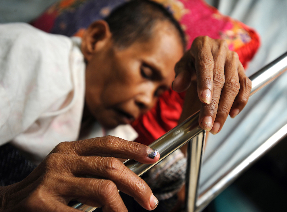 A woman lies very ill with HIV/AIDS related illness in a bed at a hospice in Phnom Penh, Cambodia. The hospice is run by local partner Maryknoll and is supported by Trocaire.