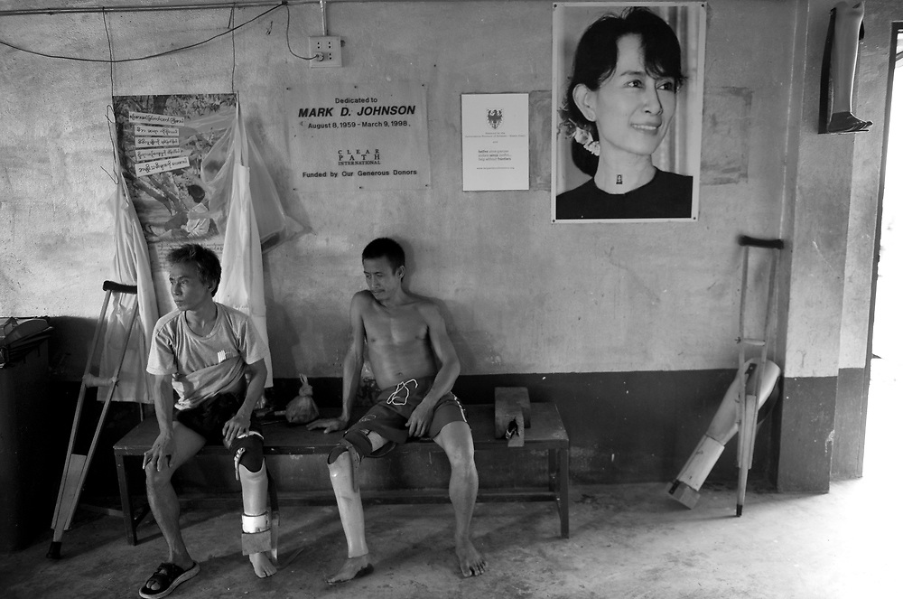 Men wait to be fitted with new articifial limbs at Mae Tao Clinics prothestics department. The Mae Tao Clinic (MTC), founded and directed by Dr. Cynthia Maung, provides free health care for refugees, migrant workers, and other individuals who cross the border from Burma to Thailand in search of of medical treatment.