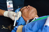 A patient being injected with local anaesthetic prior to surgery to remove cataracts in his eyes, Bali, Indonesia.