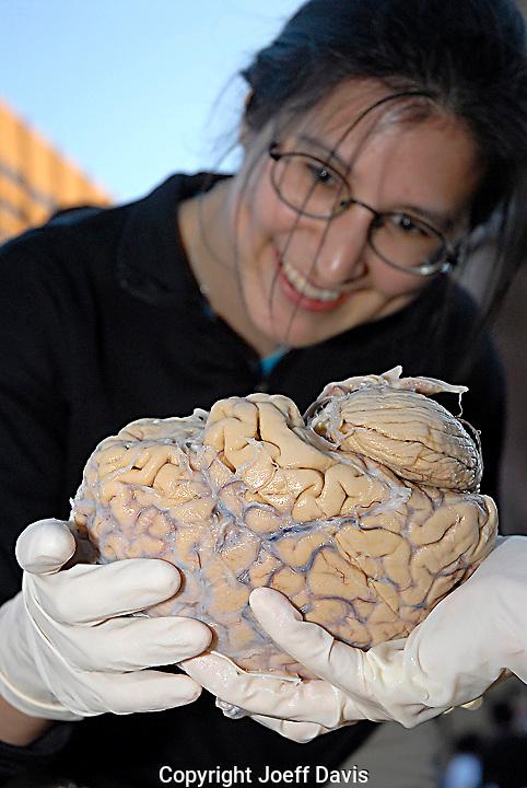 "A women holds a human brain during ""Brainfest"" in Atlanta, Georgia."