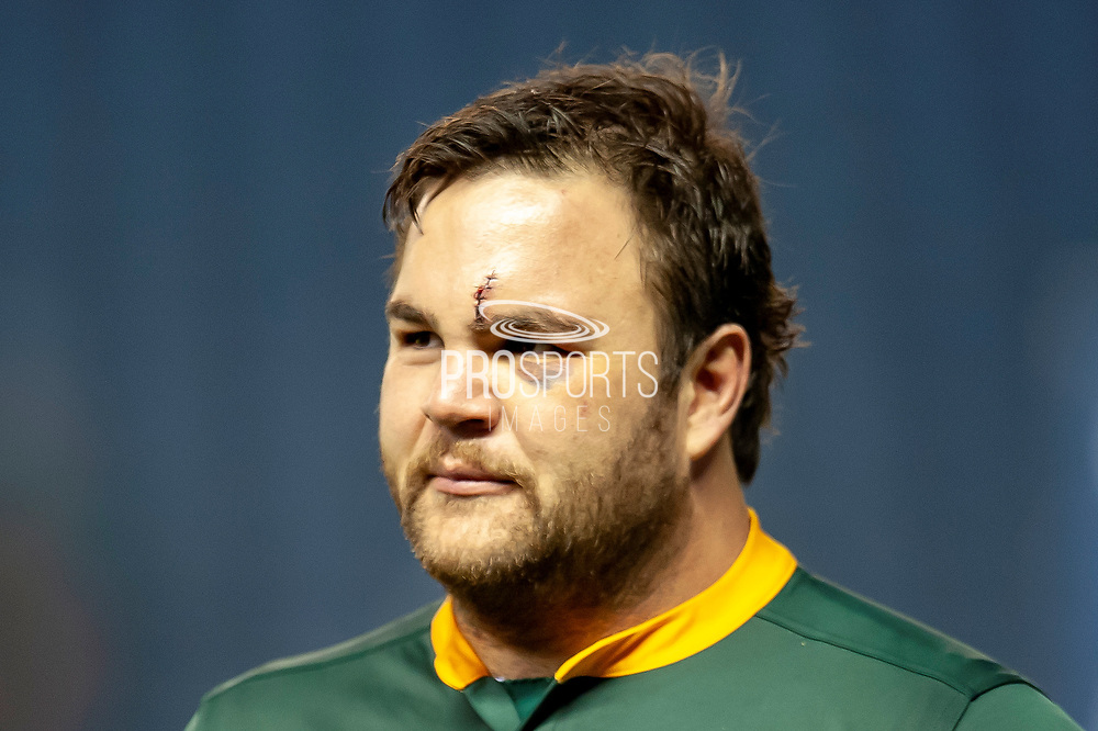 Frans Malherbe (#3) (DHL Western Province) of South Africa shows his battle scars after the Autumn Test match between Scotland and South Africa at the BT Murrayfield Stadium, Edinburgh, Scotland on 17 November 2018.