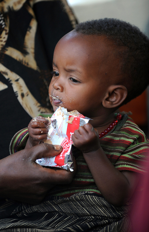 Child eating Plumpy Nut, a theraputic food consisting of peanut paste, oil and vitamins for severly malnourished children at the Dosha clinic which run by Concern,  Shashego Woreda , Southern Ethiopia. 15.8.2008