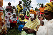 Fred Hollows Foundation Trachoma Program work in Jimma region of southern Ethiopia. Surgery Fatuma Aberaya, 35, from Munda Kenen – five kids. Operated on by health officer Addisu Bekele who finished training two weeks ago. Operated on left eye.