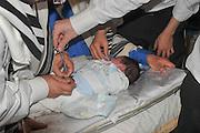 Circumcision - Brit Mila Ceremony