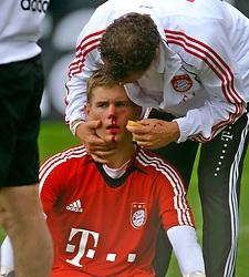 30.07.2010,  Fussball 1. Bundesliga, Training beim FC Bayern München an der Säbener Straße, Goalkeeper Thomas Kraft (Bayern München)receives atttention after receiving a knock in training.