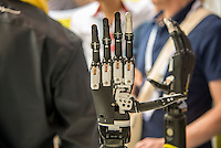 Members of the media are introduced to the i-limb quantum by Touch Bionics on June 22, 2015 in Lyon, France. The device, an electrically powered prosthetic hand with five independently powered fingers for people with upper limb deficiencies, is the first bionic hand to be approved by the French healthcare system.