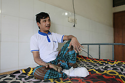 "September 18, 2016 - Dhaka, Bangladesh - Abul Bajandar, 26, sits on a hospital bad in Dhaka, Bangladesh, September 18, 2016. Doctors carried out several operations to remove extremely rare epidermodysplasia verruciformis warts from his hands and legs.  Abul, who was admitted to DMCH on January 30, has been suffering from an extremely rare genetic skin disease epidermodysplasia verruciformis, which is also referred to as ""Tree Man Disease."" The disease is caused by a defect in the immune system. It causes abnormal susceptibility to human papilloma viruses (HPVs), which eventually leads to the overgrowth of scaly macules and papules, especially on the feet and hands. Abul is the fifth person in the world reported to be suffering from the disease. (Credit Image: © Suvra Kanti Das via ZUMA Wire)"