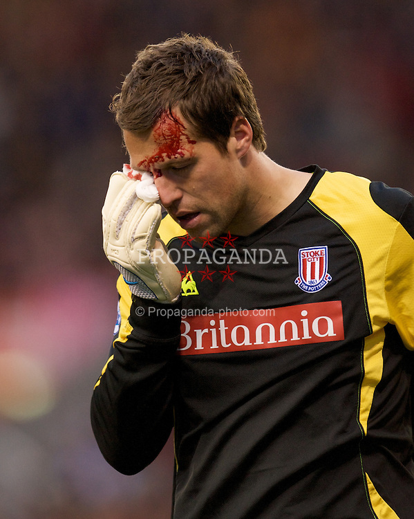 STOKE, ENGLAND - Sunday, October 19, 2008: Stoke City's goalkeeper Thomas Sorensen goes off injured as blood pours from a cut under his eye during the Premiership match against Tottenham Hotspur at the Britannia Stadium. (Photo by David Rawcliffe/Propaganda)