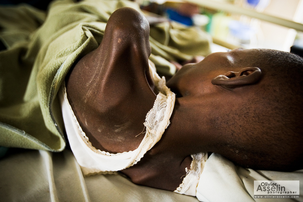 Dieumerci Bishangui, 12, a displaced boy suffering from severe malnutrition, at the Docs hospital in Goma, Democratic Republic of Congo on Tuesday December 16, 2008.