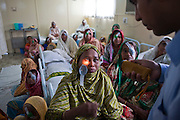 Dr Mohamed Shaheen performs an eye examination on 28 year old Reksona after performing Cataracts surgery the evening before on the IFB Jibon Tari Floating Hospital moored up on the banks of the Modhumoti River.  The Jibon Tari normally moves location every 3 months to remote riverine and offshore areas. It was launched in 1999 and has been major success, reaching more that 200,000 people..Impact Foundation Bangladesh (IFB) provide care, support and treatment to people with disabilities in Bangladesh.