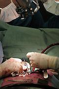 Nederland, Nijmegen, 14-2-2008Hartoperatie in het UMC-Radboud ziekenhuis.Foto: Flip Franssen