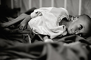 A small boy admitted to the hospital due to severe malnutrition - after arriving from the south.