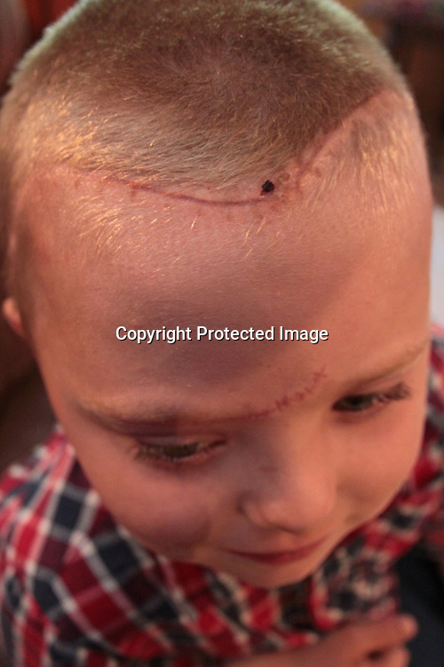 The long scar running along Coggin's scalp is the one of the few physical signs of the extensive damage the young boy's skull sustained.