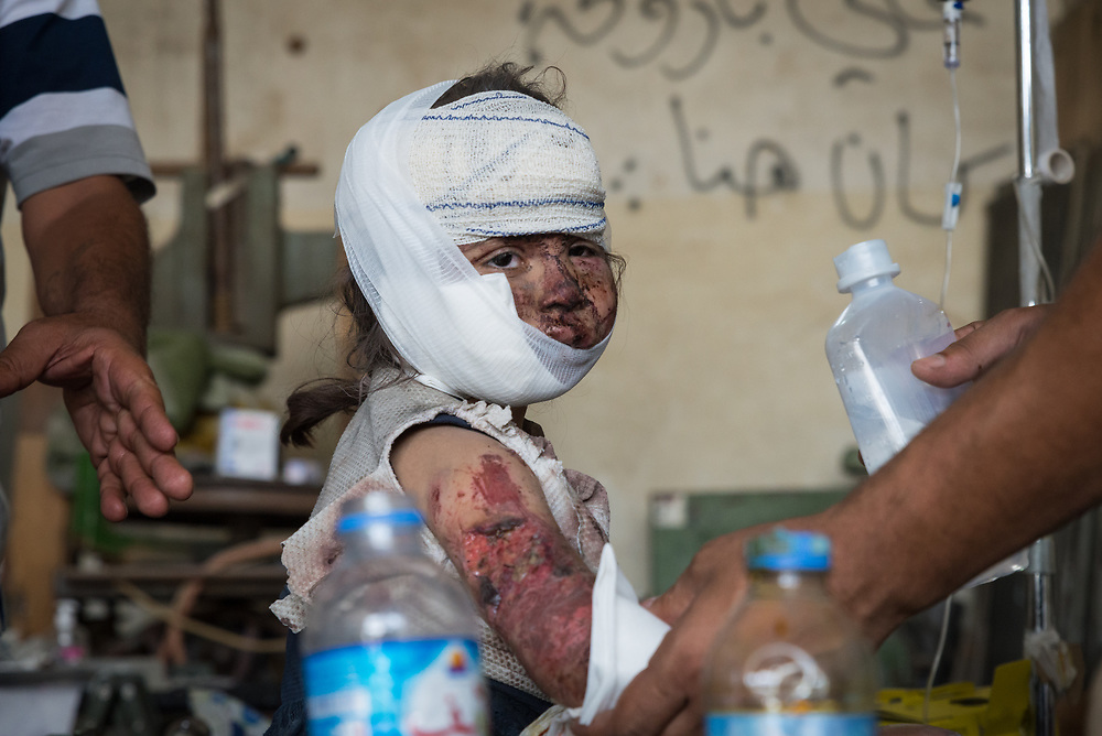 A child receives treatment for multiple injuries at a trauma stabilisation point behind the frontline after escaping the remaining pocket of ISIS held territory inside the Old City of Mosul.