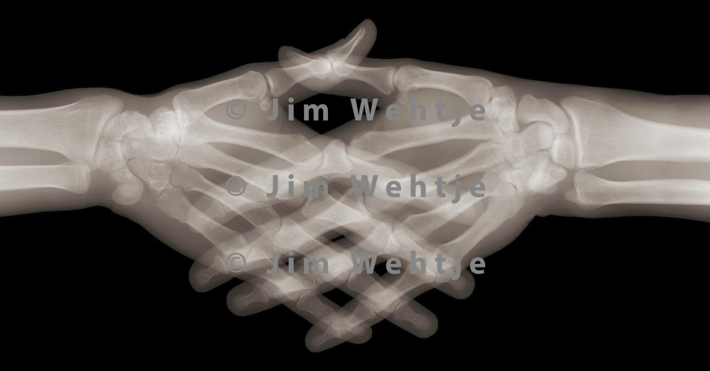 X-ray image of handshake contact (color on black) by Jim Wehtje, specialist in x-ray art and design images.