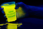 A hand soaked with glowing urine holds a collection container that has no lid.Black light