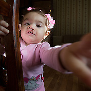 SmileTrain - Christmas comes early for Russian cleft patients