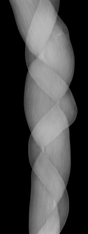 X-ray image of an Oriental bittersweet braid (Celastrus orbiculatus, white on black) by Jim Wehtje, specialist in x-ray art and design images.