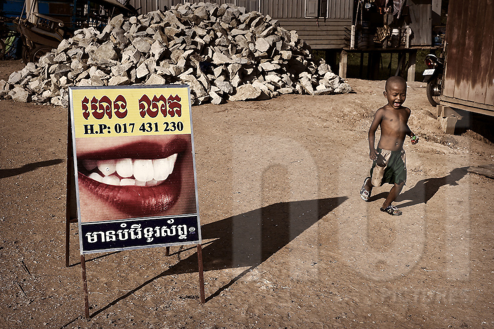 A bare chested little cambodian boy runs and cries, overtaking a funny advertising board for dental clinic cares. Cambodia, Asia.
