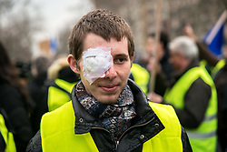 Franck (20) victim of a LBD 40 shot, he lost his eye on 1 December 2018, at the act 12 of yellow vests protest in Paris, France, on February 02, 2019. Photo by Denis Prezat/Avenir Pictures/ABACAPRESS.COM