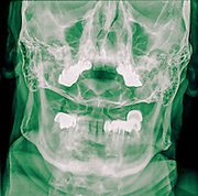 Cervical spine x-ray with a fractured Dens. A 50 year old male patient Front View