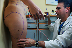 A woman has her body marked before going in to plastic surgery.  Plastic surgery is fairly common in Venezuela.  Men, women and people from all economic backgrounds splurge to reshape their body.  Venezuela is one of the cheapest countries in the world for plastic surgery so it attracts patients from all over the world. Fashion and looking good are top priorities in Venezuela, where there is a general culture of beauty.
