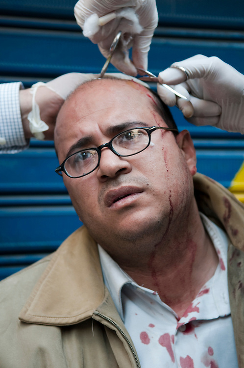 An Egyptian anti-government demonstrator is treated for his head injury at a makeshift clinic after being hit by a rock during clashes with Mubarak supporters in Tahrir Square. (Cairo, Egypt - February 2, 2011)
